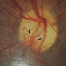 Optic disc with optico ciliary vessels.jpg