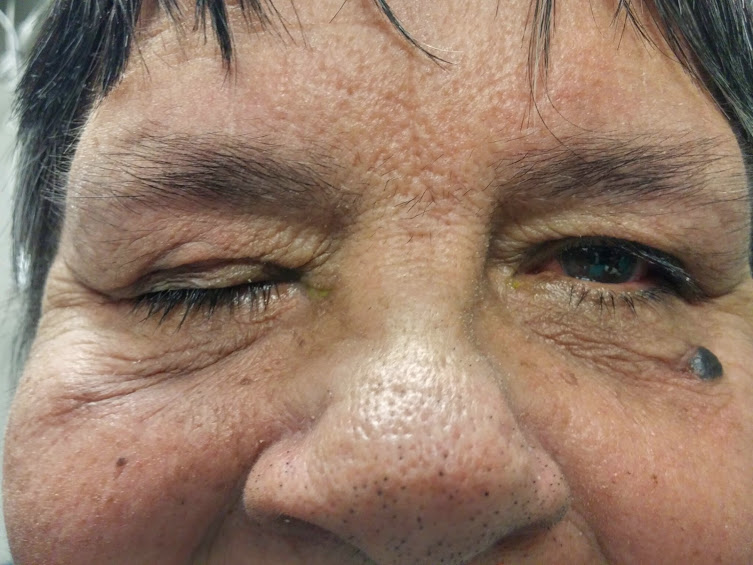 complete ptosis post surgery.jpg