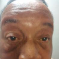 myotonia dystrohy.jpg
