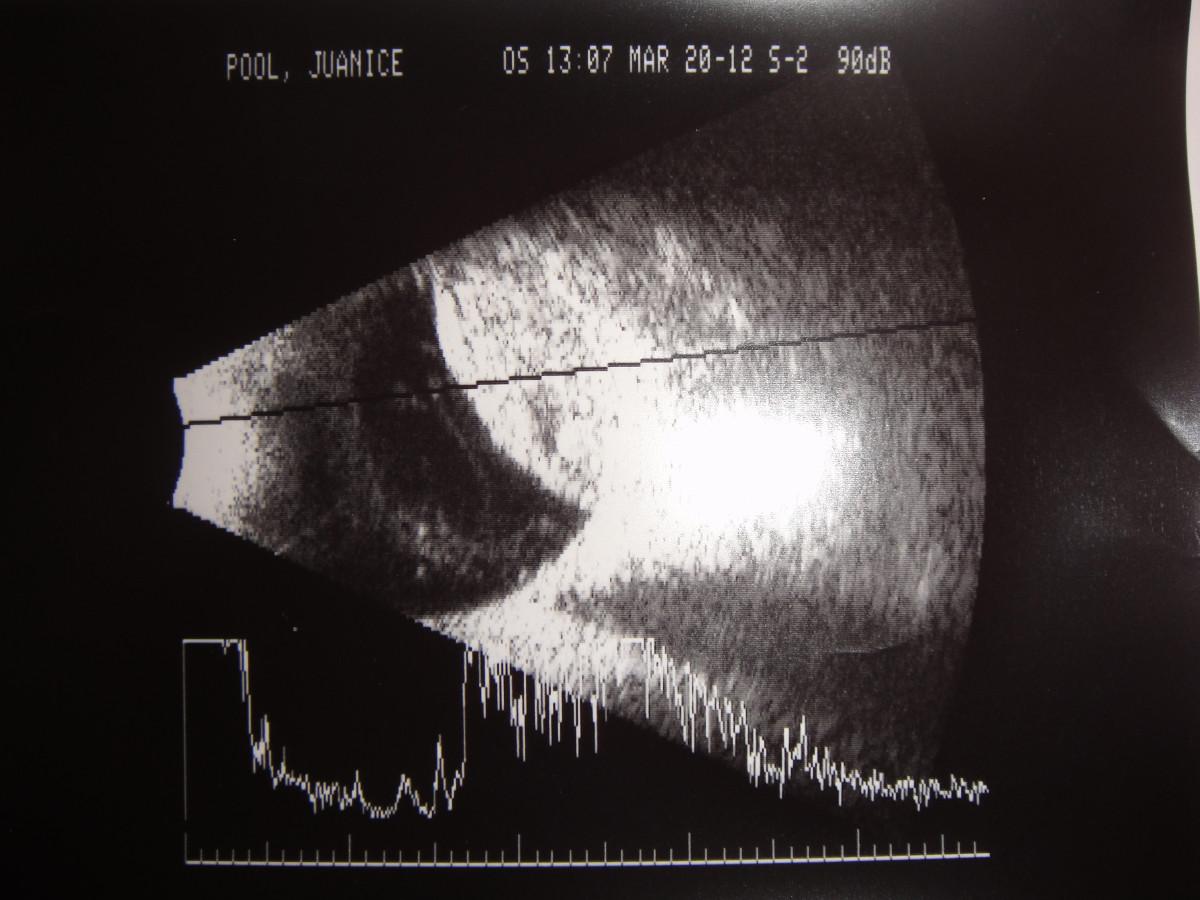 JPBscan-suprachoroidal1.jpg